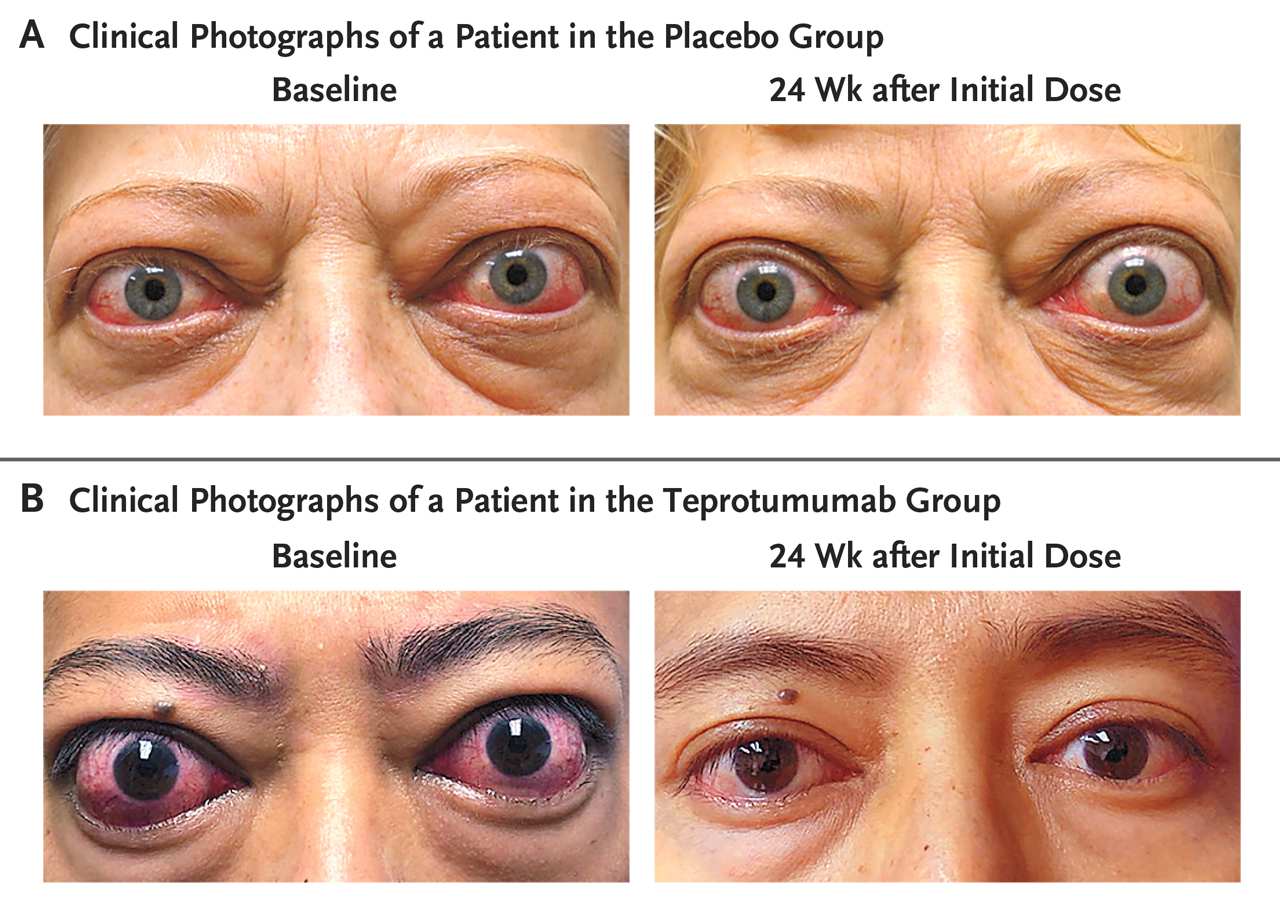 Teprotumumab For Thyroid Eye Disease Nejm Resident 360 Meta
