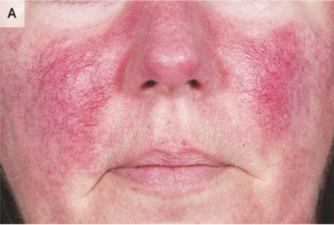 Rosacea Nejm Resident 360 Meta Property Twitter Image Content
