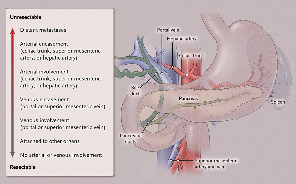 pancreatic cancer hepatic vein colorectal cancer under 40