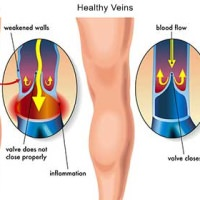 Spider vein sclerotherapy treatment specialist midtown nyc