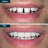 Before after cosmetic dental bonding 2 yonkers ny