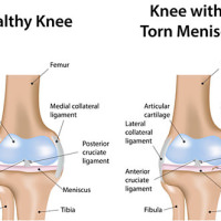 Knee injuries treatment doctor specialist nyc