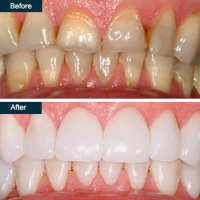 Before after porcelain dental crowns yonkers ny