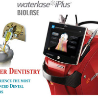 Dental implants lasers