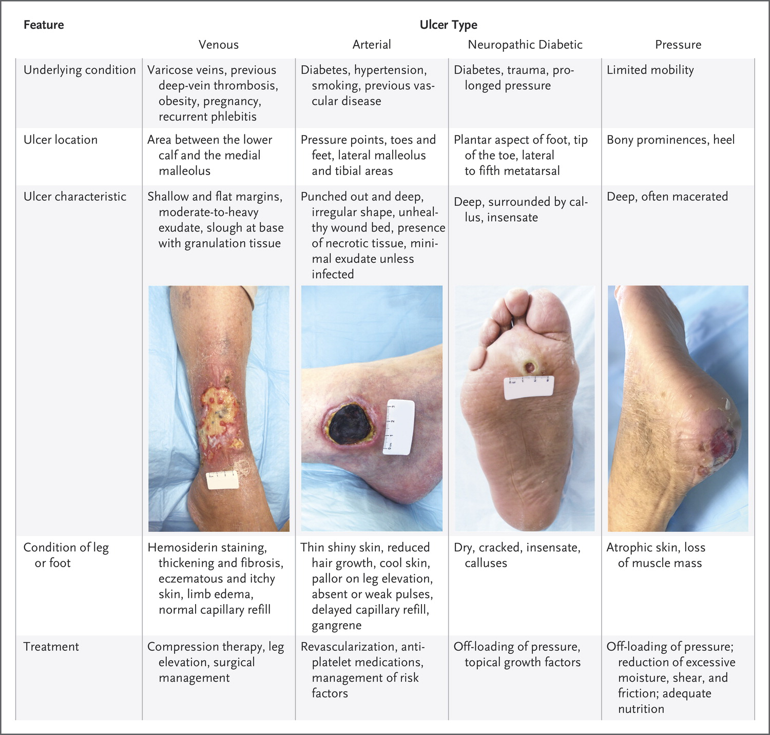 Evaluation And Management Of Lower Extremity Ulcers Nejm Resident 360